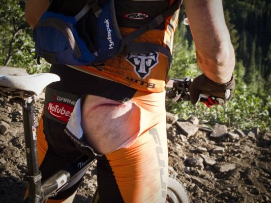Trailside First Aid: When the Gnar Shreds You and Your Bike