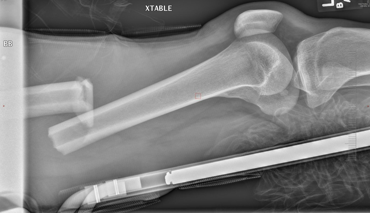 Initial xray of the snapped femur