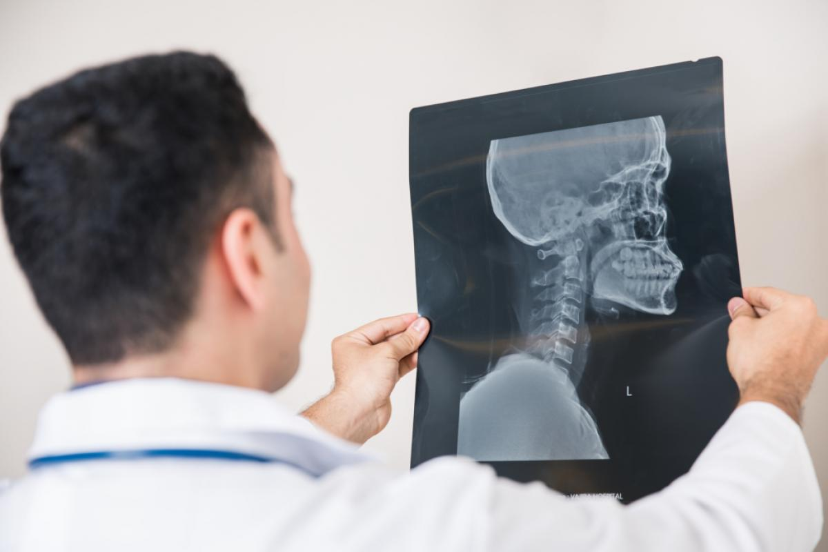 a look at head and brain injuries A concussion is a mild traumatic brain injury (tbi) it can occur after an impact to your head or after a whiplash-type injury that causes your head and brain to shake quickly back and forth.