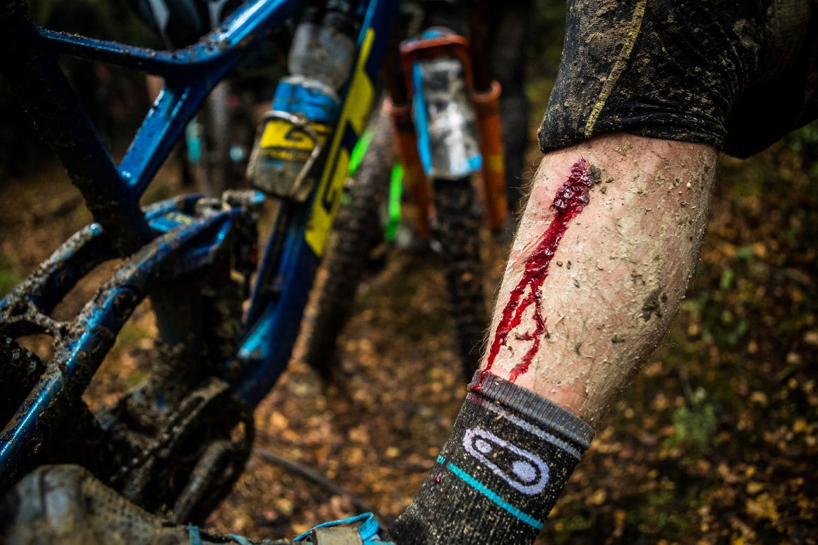 Current EWS Series Leader, Martin Maes, Receives a 90 Day Ban After Testing Positive for Banned Substance - Singletracks Mountain Bike News